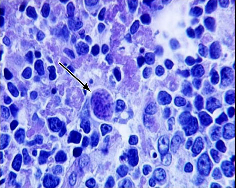Pentingkah Periksa Toksoplasma? - Laboratorium Klinik Cito