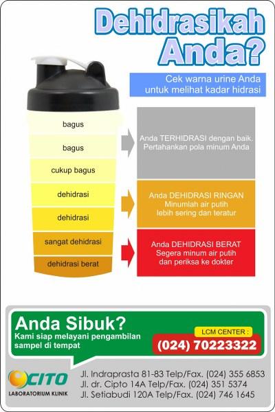 Kenali Indikasi Dehidrasi Melalui Urine Laboratorium