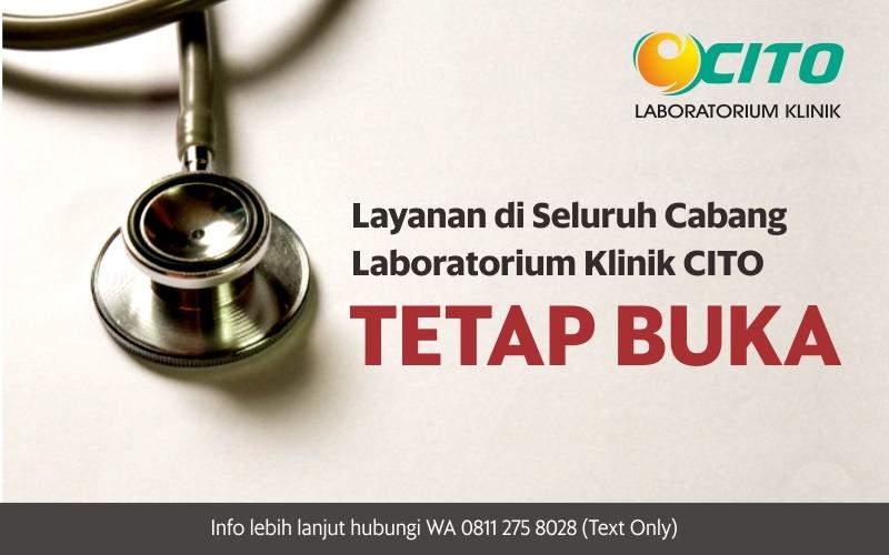 Layanan di Seluruh Cabang Laboratorium Klinik CITO Tetap Buka